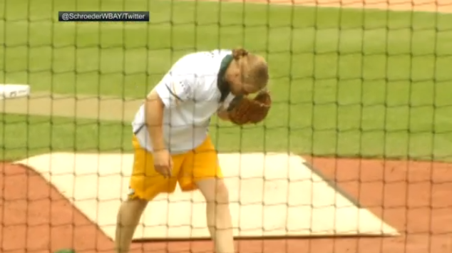 Mike McCarthy OK with softball game despite Clay Matthews' injury